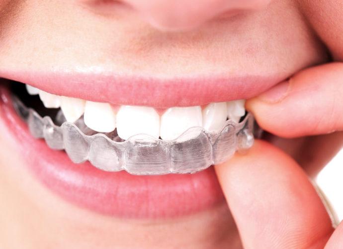hoses à savoir sur l'orthodontie Invisalign